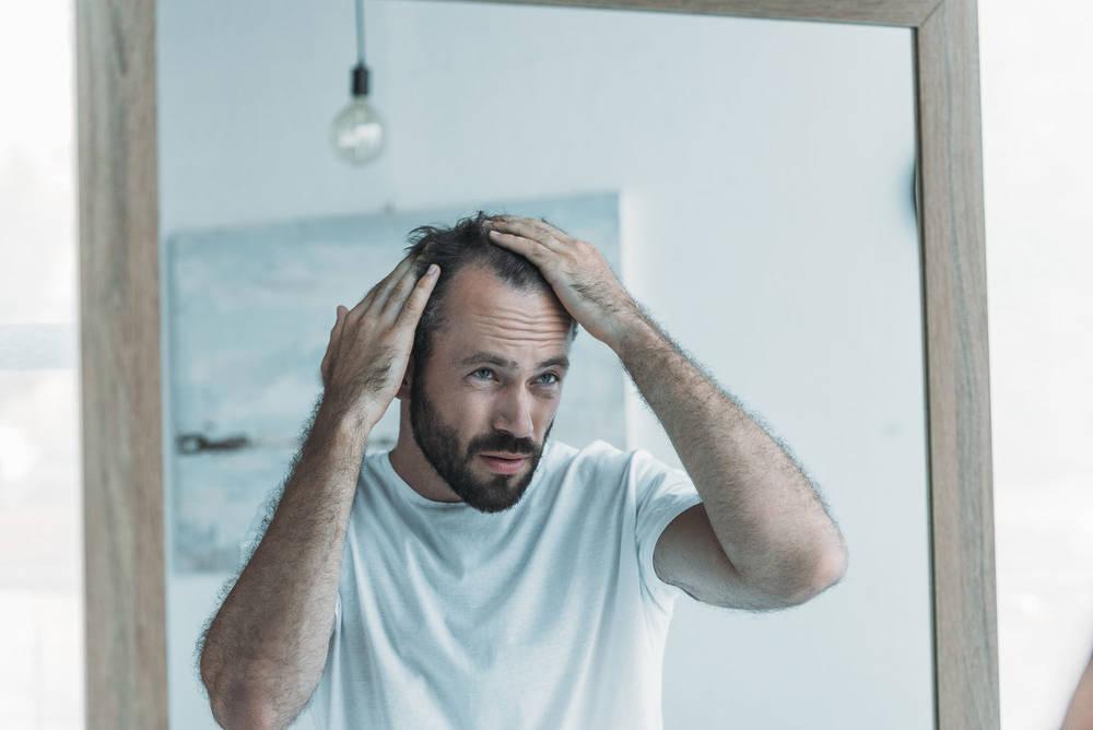 Mikropigmentacja skóry głowy jako sposób na łysienie